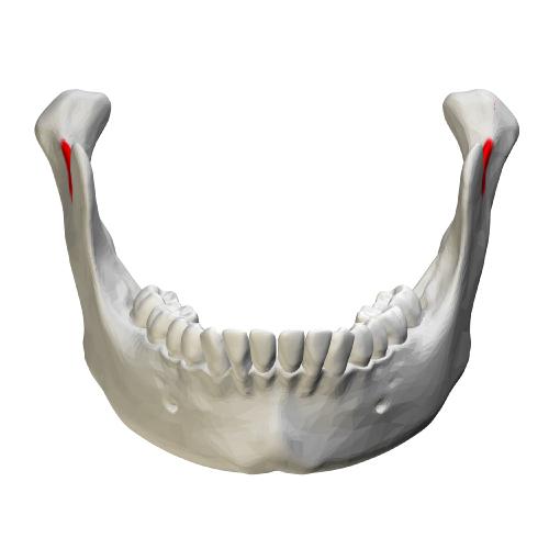 顎骨の骨量が少ない方