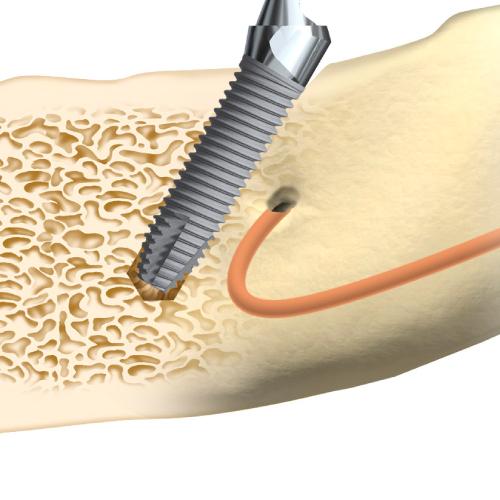顎骨への刺激