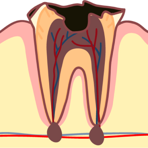 精度の高い根管治療